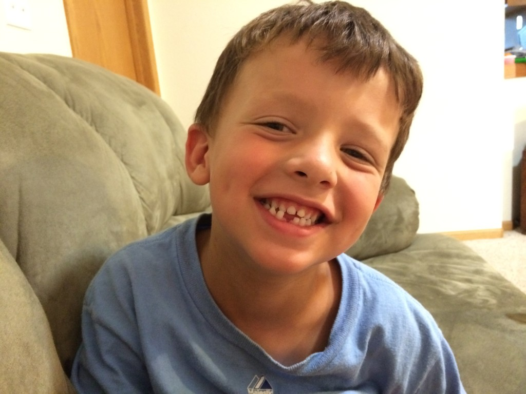 Leo lost his first tooth!